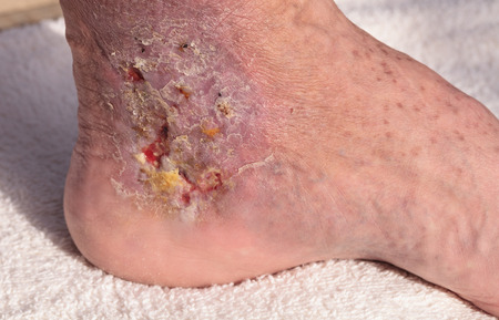 Medical picture: Infection cellulitis on the skin of an ankle caused by phlebitis and blood clots in the vein. Stock Photo