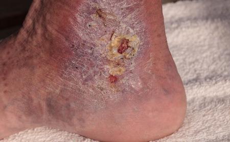 pus: immagine medica: infezione cellulite sulla pelle di una caviglia causato da flebite e coaguli di sangue nella vena.