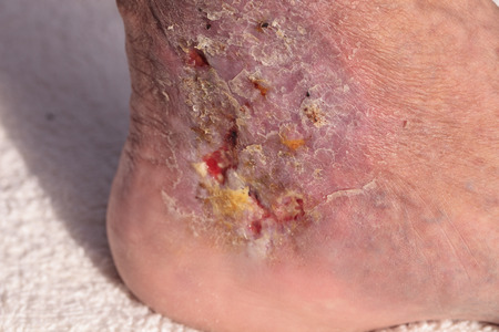 pus: Medical picture: Infection cellulitis on the skin of an ankle caused by phlebitis and blood clots in the vein. Stock Photo