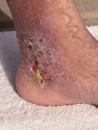 clot: Medical picture: Infection cellulitis on the skin of an ankle caused by phlebitis and blood clots in the vein. Stock Photo