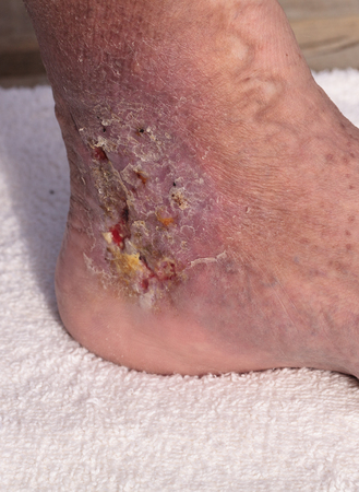 pus: Medical picture: Infection cellulitis on the skin of an ankle caused by phlebitis and blood clots in the vein. Archivio Fotografico