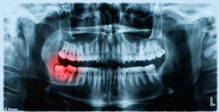 Panoramic x-ray image of teeth and mouth with wisdom teeth