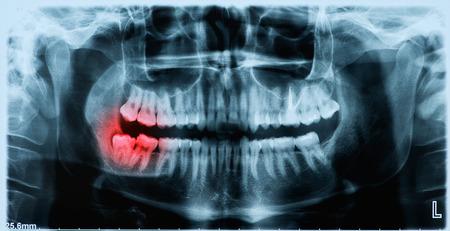 Panoramaröntgenbild der Zähne und Mund mit Weisheitszähnen Standard-Bild
