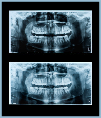 impacted: Panoramic dental x-ray  Stock Photo