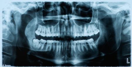 tooth ache: Panoramic dental x-ray  Stock Photo