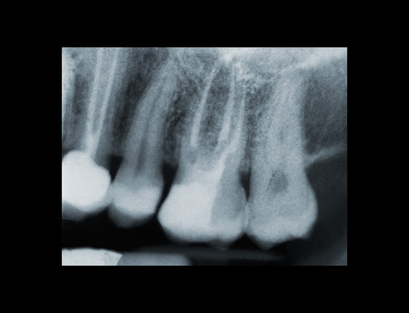 X-ray of dental Filling and devitalization Stock Photo