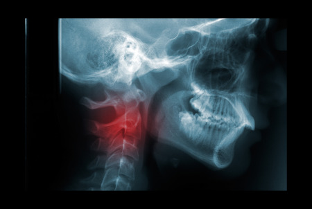 degeneration: X-ray of the cervical spine painful area Stock Photo