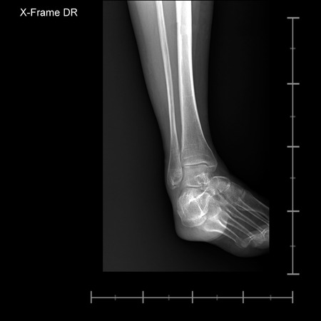 X-ray tarsal and ankle front photo