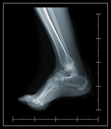 X-ray foot and ankle lateral view photo