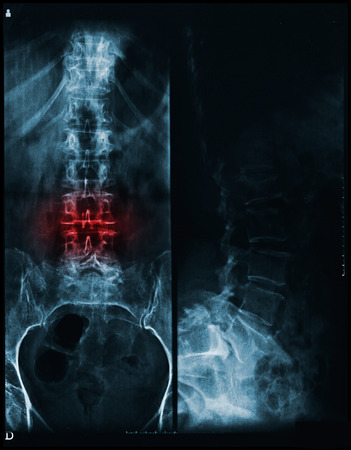 pelvis: spine and pelvis of a human body x-ray - painful area Stock Photo