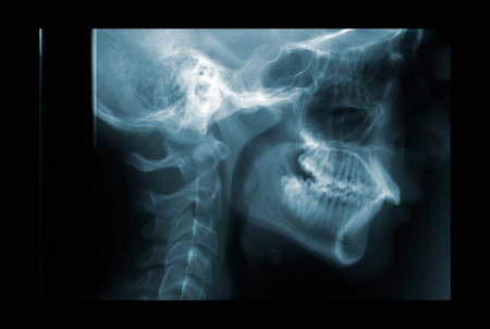 spinal conditions: X-ray of the cervical spine