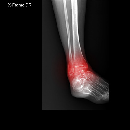 X-ray tarsal and ankle painful area photo