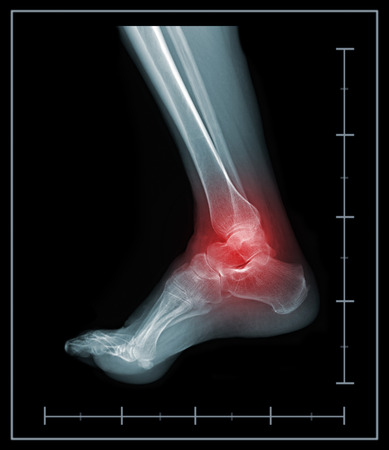 X-ray foot painful ankle area photo