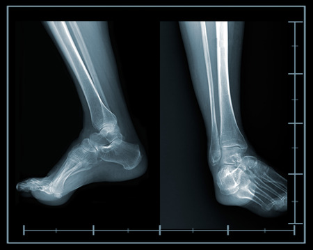 X-ray foot lateral and front view photo