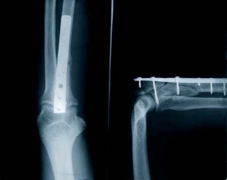 X-ray ulna fracture - implants with screws
