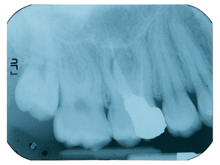 revitalization: X-ray of dental Filling and revitalization