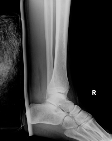 rx: rx of an injured ankle Stock Photo