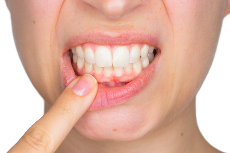 Closeup portrait of young woman showing, with his finger, the lower gingiva with pain expression. Dental care and toothache. Stock Photo