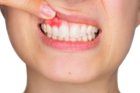 Closeup ritratto di giovane donna mostrando, con il dito, infiammata gengiva superiore con espressione dolore. Cura dentale e mal di denti.