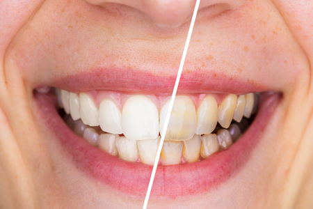 Whitening - Dental care, a beautiful smile and teeth whitening treatment before and after.