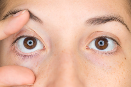 tired: Close up view of young woman opening with fingers her right eye