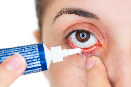 근접 촬영 염증이나 결막염 눈에 점안약이나 연고를 적용하는 어린 소녀의