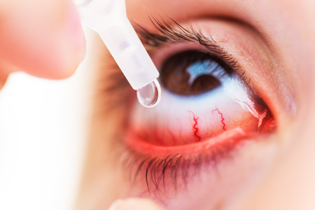 Closeup Of young girl applying eyedrops on inflamed or conjunctivitis eye 写真素材