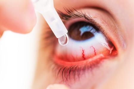 Closeup Of young girl applying eyedrops on inflamed or conjunctivitis eye Standard-Bild