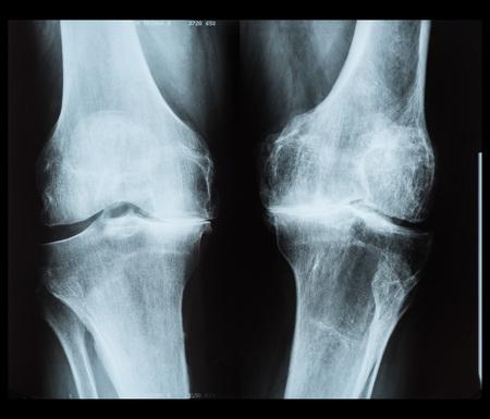 人間の膝の x 線写真 写真素材