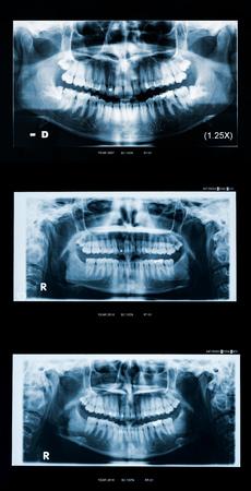 十代の成人女性パノラマ歯科X線進化