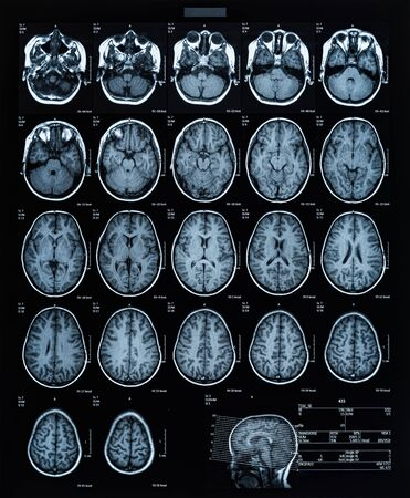 health medical image of an mri of the head showing the brain. Magnetic resonance image. Zdjęcie Seryjne - 132090564