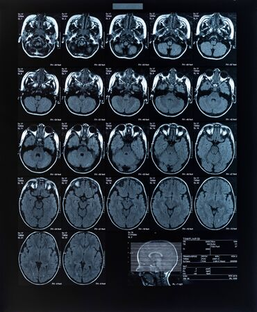 health medical image of an mri of the head showing the brain. Magnetic resonance image.