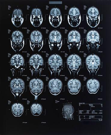 Imagen médica de salud de una resonancia magnética de la cabeza que muestra el cerebro. Imagen de resonancia magnética.