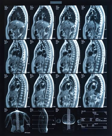 Health medical image of an mri of the dorsal showing the spinal column. Magnetic resonance image. Zdjęcie Seryjne - 132090267