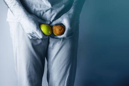Un uomo al livello del , con in mano una mela matura e marcia. Malattia per gli uomini. Il concetto di protezione delle infezioni sessualmente trasmissibili. Cancro ai testicoli. Tinta blu. Archivio Fotografico