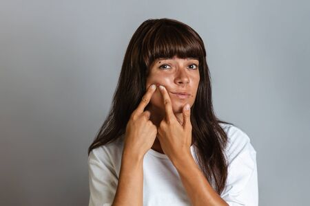 Acne and cosmetology. A tanned young woman squeezes a pimple on her face. Copy space Фото со стока