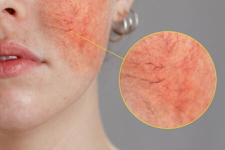 Cosmetology and rosacea. Close-up portrait of female face, cheeks with severe inflammation, blood vessels and rosacea.