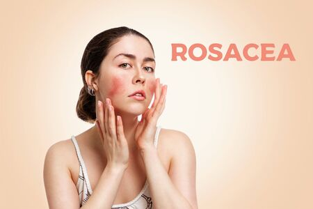 Portrait of a young Caucasian woman showing redness and inflamed blood vessels on her cheeks. The inscription rosacea. Beige background. The concept of rosacea and couperose.