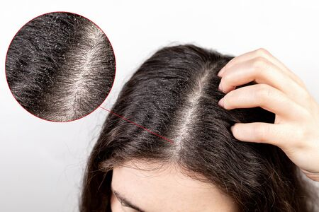 The woman scratches her head with her hand, showing a parting of dark hair with dandruff. Close up. The view from the top. White background. Zoomed parting of hair. The concept of dandruff and pediculosis. Stock Photo