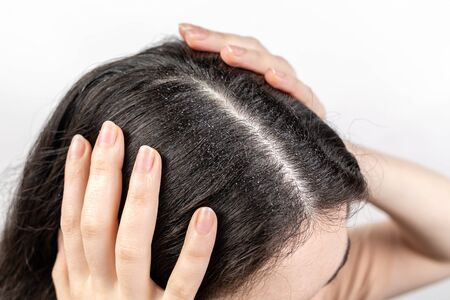 The woman holds her head with her hands, showing a parting of dark hair with dandruff. Close up. The view from the top. White background. The concept of dandruff and pediculosis.