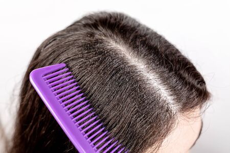 The woman is a brunette, parted her hair with a comb and shows dandruff. Close up. The view from the top. White background. The concept of dandruff and pediculosis. Stock Photo