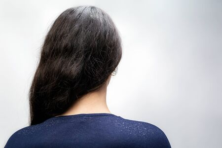 The woman is a brunette with her hair pulled back to one side, and her shoulders are bare, where dandruff is noticeable. Rear view. White background. The concept of dandruff and pediculosis. Stock Photo