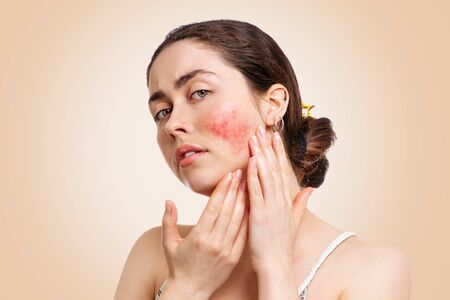 Portrait of a young pretty Caucasian woman who frowns and shows reddened and inflamed cheeks. Beige background.The concept of rosacea, healthcare and couperose.