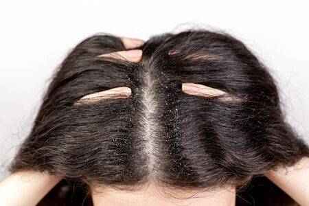 The woman holds her head with her hands, showing a parting of dark hair with dandruff. Close up. The view from the top. White background. Copy space. The concept of dandruff and pediculosis. Stock Photo