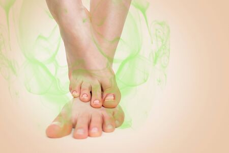 Women's feet, placed one on top of the other, which are indicative of nail inflammation and a stinky smell. Beige background. Copy space. Concept of foot and nail fungus, dermatological diseases. Stok Fotoğraf