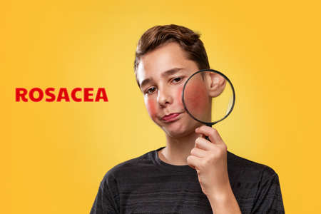 The concept of teenage acne. A teenage boy with a distressed face, holding a magnifying glass near his cheek with rosacea. Yellow background. The inscripion Rosacea . Stock Photo