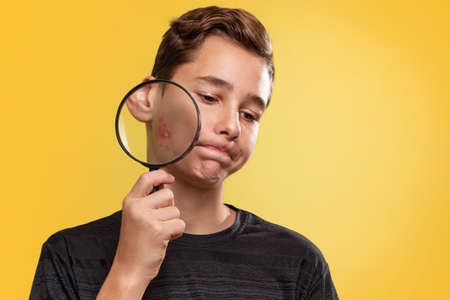The concept of teenage acne. A teenage boy with a disgruntled face, holding a magnifying glass near the cheek with pimples. Yellow background. Copy space.