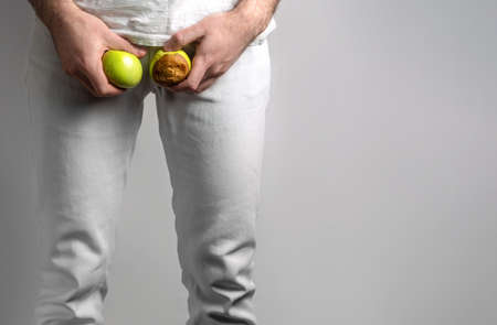 A man at the level of the genitals, holding a ripe and rotten apple. Disease for men. The concept of protection of sexually transmitted infections. Copy space.