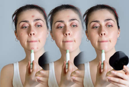 A young beautiful woman looks in the mirror and masks the rash on her face. Three photos with the subsequent result. The concept of acne, growing up and cosmetology.