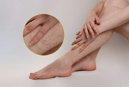 Medicine and health. The concept of female varicose veins. The woman crossed her arms over her legs, which were covered with veins and spider veins. The enlarged image of blood vessels.